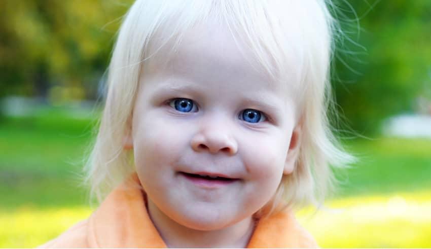 Albinismo en los niños: la genética los hace únicos