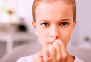 Causas y tratamientos para el sangrado nasal en los niños