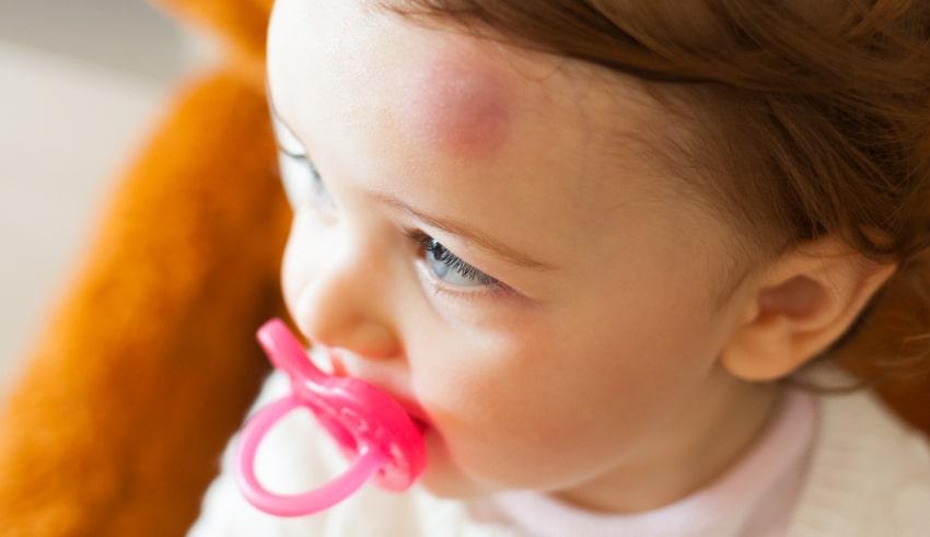 golpes en los niños en la cabeza