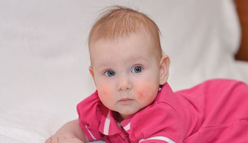 Avances en el tratamiento de la dermatitis atópica