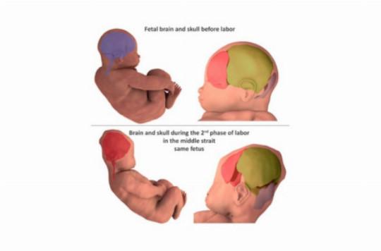 Describen cómo se deforma la cabeza de los bebés para facilitar el parto