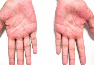 También conocida como síndrome de Kawasaki y síndrome de ganglios linfáticos mucocutáneos.