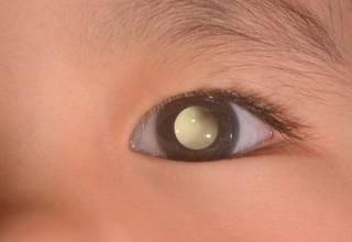 La causa principal de este tipo de enfermedad no tiene un origen específico, sin embargo, según la Clínica Clofán se puede afirmar que existe una mayor propensión de desarrollo a personas de piel blanca y ojos claros.