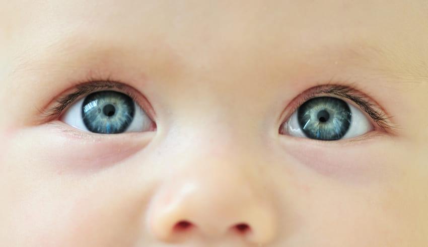 El retinoblastoma es un cáncer del ojo que se forma en la retina y que suele desarrollarse en niños menores de 5 años.