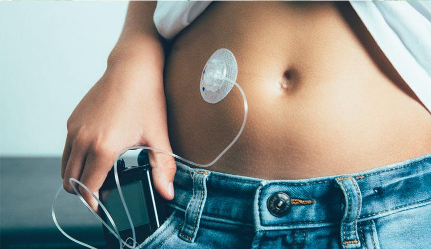 Este método, el cual es conocido como páncreas artificial o circuito cerrado, funciona mediante un control de la diabetes que funciona todo en uno.