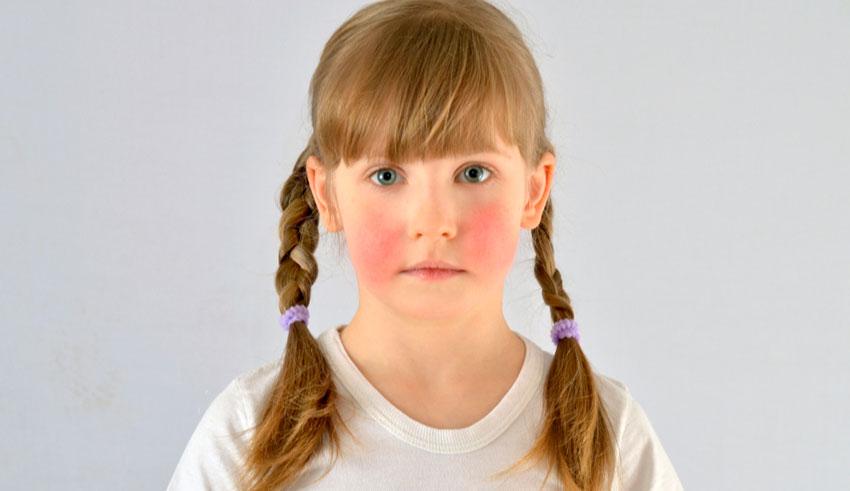 Varios días después de haber sido infectado por el virus usualmente de cuatro a 14 días, el niño puede desarrollar síntomas similares a una gripe.